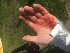 My hand looked more dramatic than it was when the blood was in full-flow!